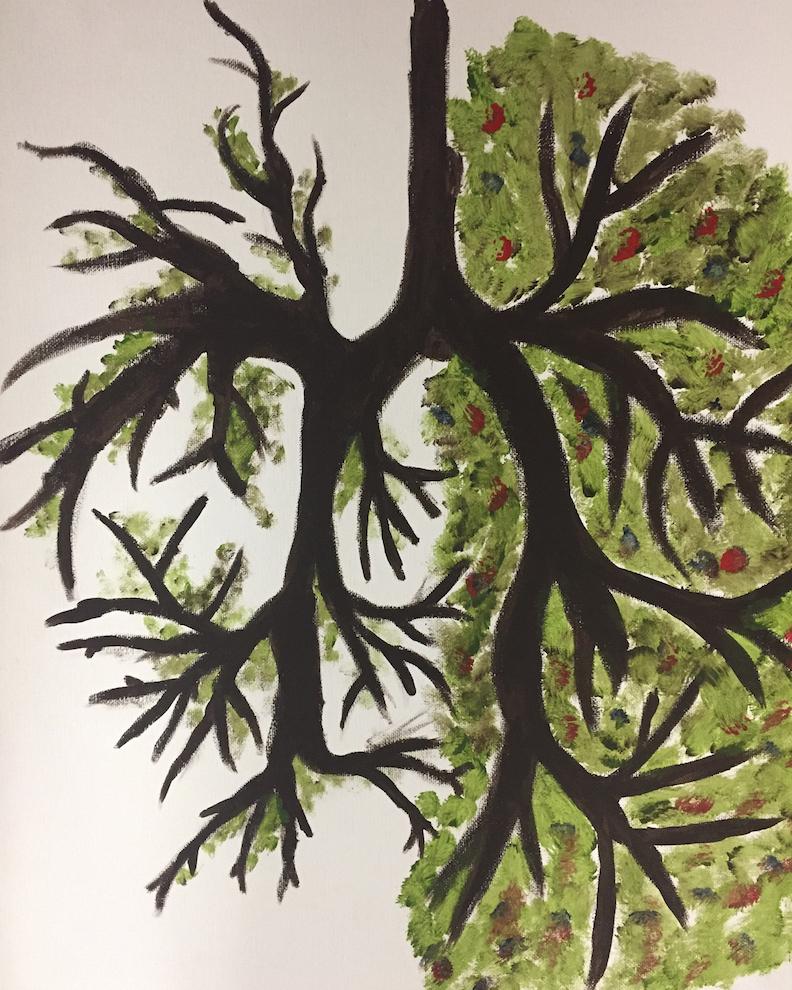 Jakari McDonald: Lungs